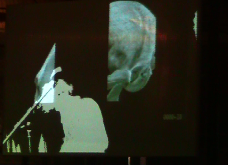 D&AD 2010 - Visual performance by the Light Surgeons for Chew Lips (Live camera for VJing by Coco Ding Ding)